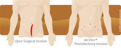Radical Prostatectomy Robotic Surgery New Mexico